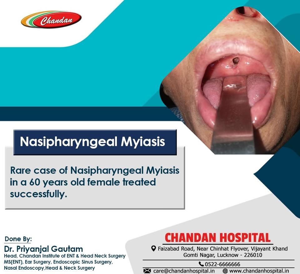 Nasipharyngeal Myiasis Treatments